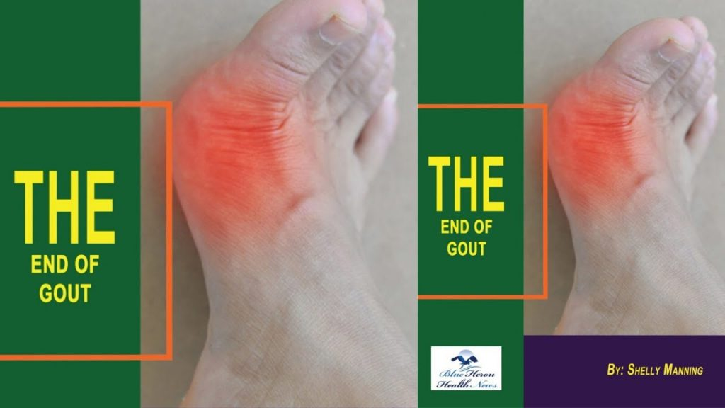 End of Gout - Does It Really Works